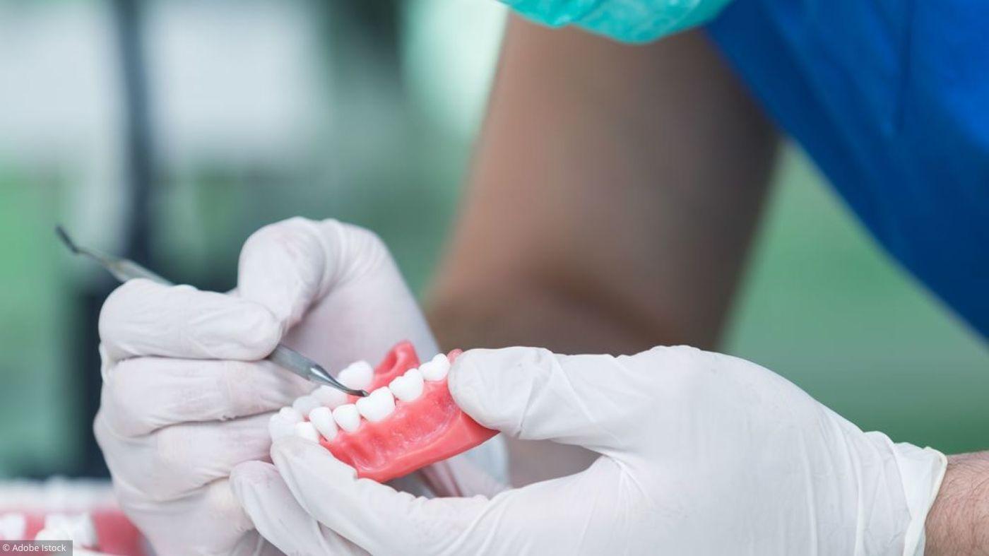 Implant dentaire : quels sont les avantages ?